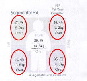 چربی-نواحی-مختلف-بدن
